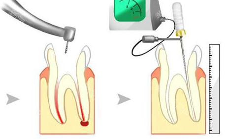 显微根管治疗技术